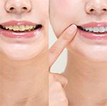 ホワイトニング(歯を白く)